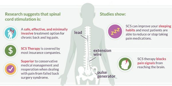 Block Pain and Get Back to Your Life With Spinal Cord Stimulation